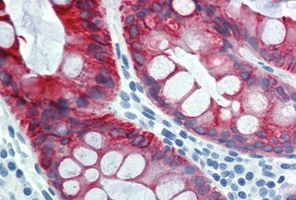 Immunohistochemistry (Formalin/PFA-fixed paraffin-embedded sections) - Anti-Cytokeratin 18 antibody [DC 10] (ab7797)