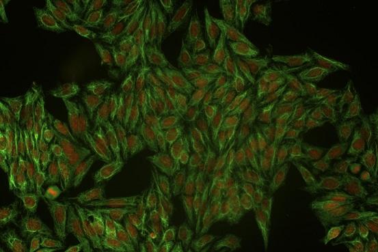 Immunocytochemistry/ Immunofluorescence - Anti-Cytokeratin 18 antibody [DC 10] (ab7797)
