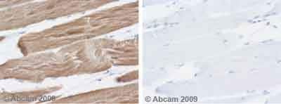 Immunohistochemistry (Formalin/PFA-fixed paraffin-embedded sections) - Anti-muscle Actin antibody [HHF35] (ab7813)