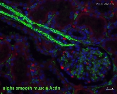 Immunohistochemistry (Formalin/PFA-fixed paraffin-embedded sections) - Anti-alpha smooth muscle Actin antibody [1A4] (ab7817)