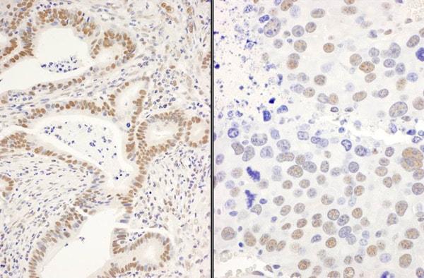 Immunohistochemistry (Formalin/PFA-fixed paraffin-embedded sections) - Anti-DIS antibody (ab70243)