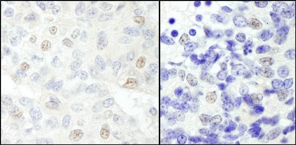 Immunohistochemistry (Formalin/PFA-fixed paraffin-embedded sections) - Anti-NCOA62 antibody (ab70828)