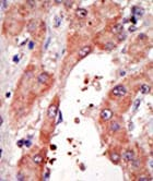 Immunohistochemistry (Formalin/PFA-fixed paraffin-embedded sections) - Anti-FACL4 antibody - Aminoterminal end (ab70937)