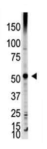 Western blot - Anti-DMAP1 antibody - Carboxyterminal end (ab71789)