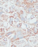 Immunohistochemistry (Formalin/PFA-fixed paraffin-embedded sections) - Anti-DMAP1 antibody - Carboxyterminal end (ab71789)