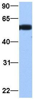 Western blot - Anti-TUBA3C antibody (ab75069)