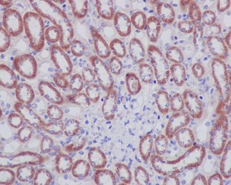 Immunohistochemistry (Formalin/PFA-fixed paraffin-embedded sections) - Anti-Prohibitin antibody [EP2803Y] (ab75766)