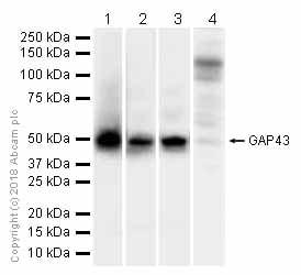 Western blot - Anti-GAP43 antibody [EP890Y] (ab75810)