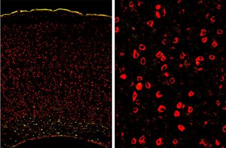 Immunohistochemistry (Frozen sections) - Anti-UBE2I / UBC9 antibody [EP2938Y] (ab75854)