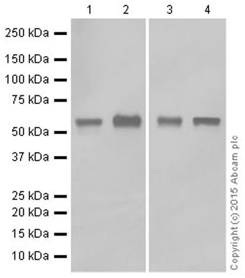 Western blot - Anti-Cytokeratin 5 antibody [EPR1600Y] (ab75869)