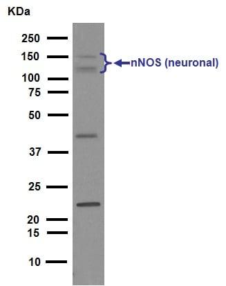 Western blot - Anti-nNOS (neuronal) antibody [EP1855Y] (ab76067)