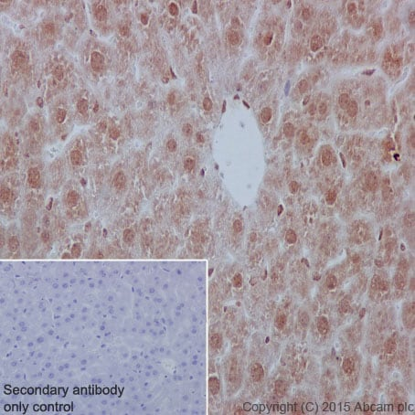 Immunohistochemistry (Formalin/PFA-fixed paraffin-embedded sections) - Anti-YB1 antibody [EP2708Y] (ab76149)