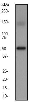 Western blot - Anti-Estrogen Related Receptor alpha antibody [EPR46Y] (ab76228)