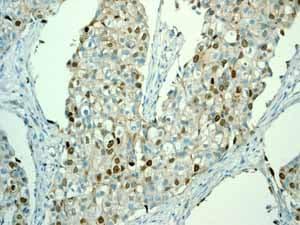 Immunohistochemistry (Formalin/PFA-fixed paraffin-embedded sections) - Anti-Survivin antibody [EP2880Y] (ab76424)