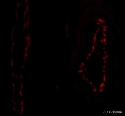Immunohistochemistry (Formalin/PFA-fixed paraffin-embedded sections) - Anti-CD31 antibody [EPR3094] (ab76533)