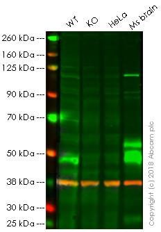 Western blot - Anti-Parkin antibody [PRK8] (ab77924)