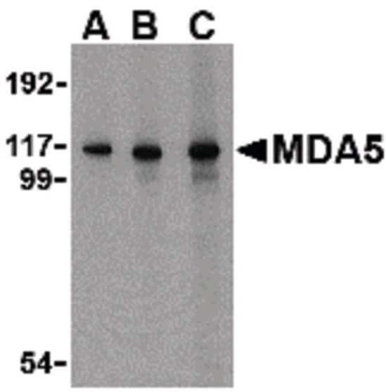 Western blot - Anti-MDA5 antibody (ab79055)