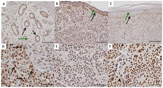 Immunohistochemistry (Formalin/PFA-fixed paraffin-embedded sections) - Anti-Pax2 antibody [EP3251] (ab79389)