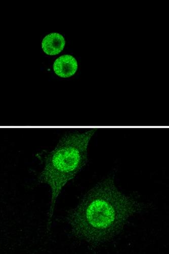 Immunocytochemistry/ Immunofluorescence - Anti-HMGB1 antibody [EPR3507] (ab79823)