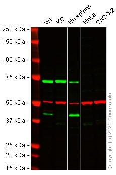 Western blot - Anti-CX3CR1 antibody (ab8020)