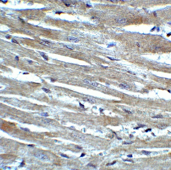 Immunohistochemistry (Formalin/PFA-fixed paraffin-embedded sections) - Anti-CX3CR1 antibody (ab8021)