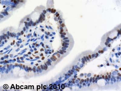 Immunohistochemistry (Formalin/PFA-fixed paraffin-embedded sections) - Anti-MTA2/PID antibody (ab8106)