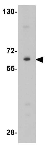 Western blot - Anti-IL-1RAcP antibody (ab8109)