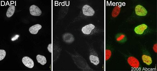 Immunocytochemistry/ Immunofluorescence - Anti-BrdU antibody [IIB5] (ab8152)