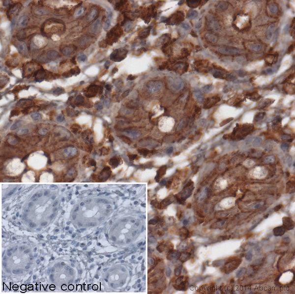 Immunohistochemistry (Formalin/PFA-fixed paraffin-embedded sections) - Anti-beta Actin antibody (ab8227)
