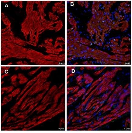 Immunohistochemistry (Formalin/PFA-fixed paraffin-embedded sections) - Anti-Cardiac Troponin T antibody [1C11] (ab8295)