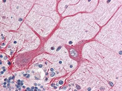 Immunohistochemistry (Formalin/PFA-fixed paraffin-embedded sections) - Anti-Notch1 intracellular domain antibody (ab8387)