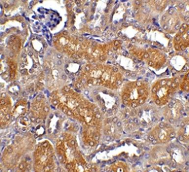 Immunohistochemistry (Formalin/PFA-fixed paraffin-embedded sections) - Anti-DFFB/CAD antibody (ab8401)