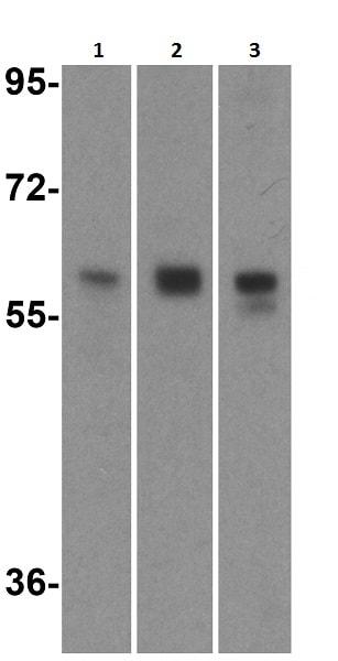 Western blot - Anti-RIP2 antibody (ab8428)