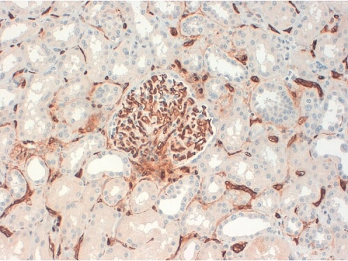 Immunohistochemistry (Formalin/PFA-fixed paraffin-embedded sections) - Anti-CD34 antibody [QBEND-10] (ab8536)