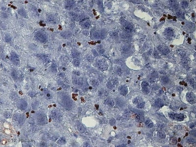 Immunohistochemistry (Frozen sections) - Anti-Mannose Receptor antibody [15-2] (ab8918)