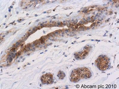 Immunohistochemistry (Formalin/PFA-fixed paraffin-embedded sections) - Anti-pan-AKT (phospho T308) antibody (ab8933)