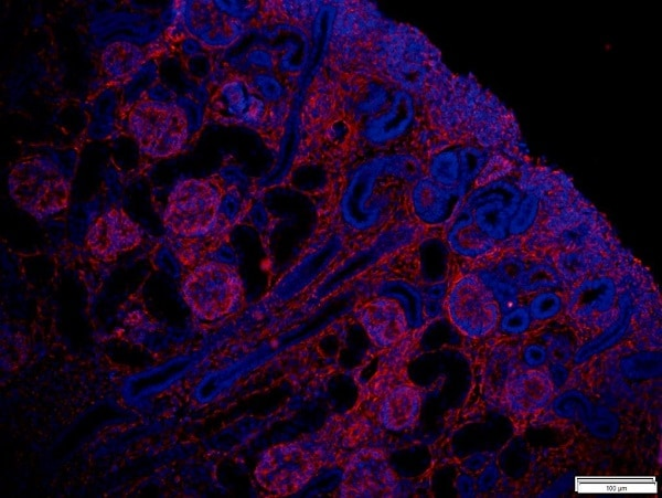 Immunohistochemistry (Formalin/PFA-fixed paraffin-embedded sections) - Anti-Vimentin antibody [RV202] (ab8978)