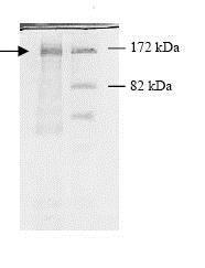 SDS-PAGE - Recombinant human HDAC5 protein (ab80348)