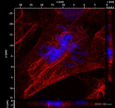 Immunocytochemistry/ Immunofluorescence - Anti-Cytokeratin 15 antibody [LHK15] (ab80522)