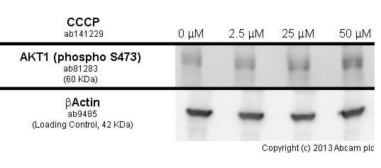 Western blot - Anti-AKT1 (phospho S473) antibody [EP2109Y] (ab81283)