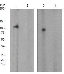 Western blot - Anti-FAK (phospho Y397) antibody [EP2160Y] (ab81298)