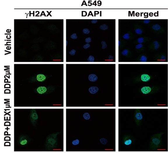 Immunocytochemistry/ Immunofluorescence - Anti-gamma H2A.X (phospho S139) antibody [EP854(2)Y] - ChIP Grade (ab81299)