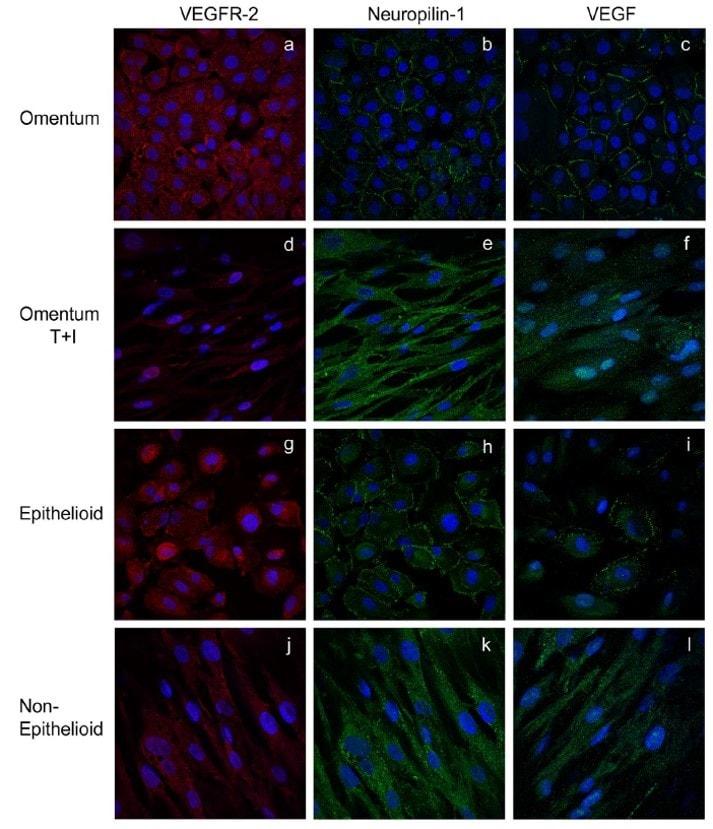 Immunocytochemistry - Anti-Neuropilin 1 antibody [EPR3113] (ab81321)