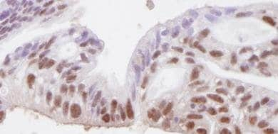 Immunohistochemistry (Formalin/PFA-fixed paraffin-embedded sections) - Anti-SMC3 antibody (ab82551)