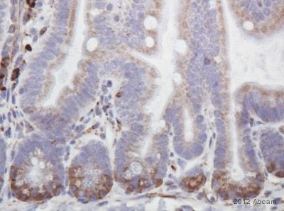 Immunohistochemistry (Formalin/PFA-fixed paraffin-embedded sections) - Anti-IGFBP4 antibody (ab83846)