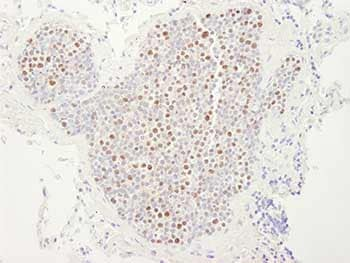 Immunohistochemistry (Formalin/PFA-fixed paraffin-embedded sections) - Anti-MCM4 antibody (ab84153)