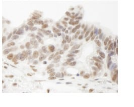 Immunohistochemistry (Formalin/PFA-fixed paraffin-embedded sections) - Anti-HNRPUL1 antibody (ab84774)