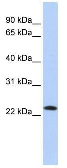 Western blot - Anti-SDF2 antibody (ab85417)