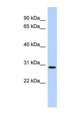 Western blot - Anti-SERTAD2 antibody (ab87150)