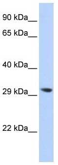 Western blot - Anti-LYPLA2 antibody (ab87231)